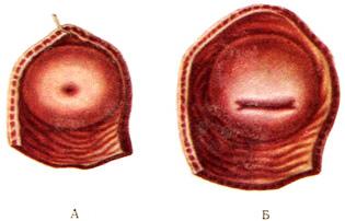 фото как открывается влагалище перед схваткам
